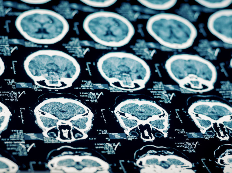 Energy Drinks and Alcohol Consumption Worsens Traumatic Brain Injuries