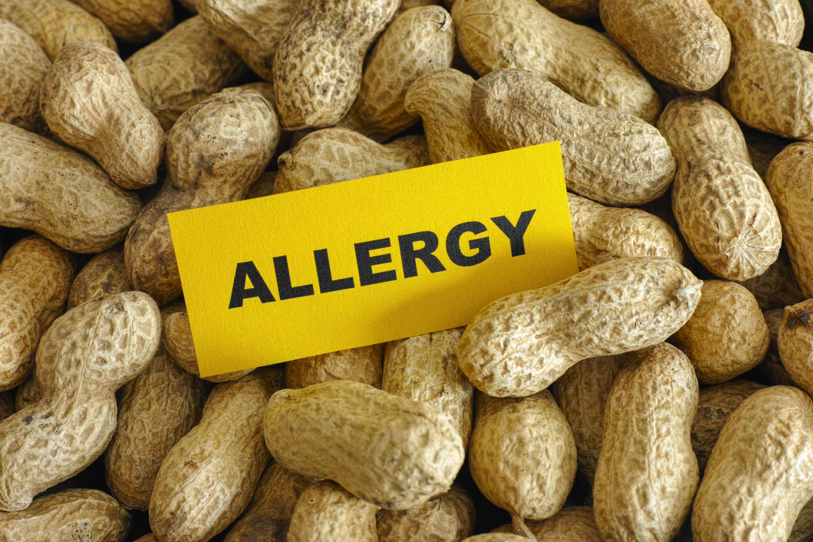 Drug Addiction: Is It An Allergy Or Not?