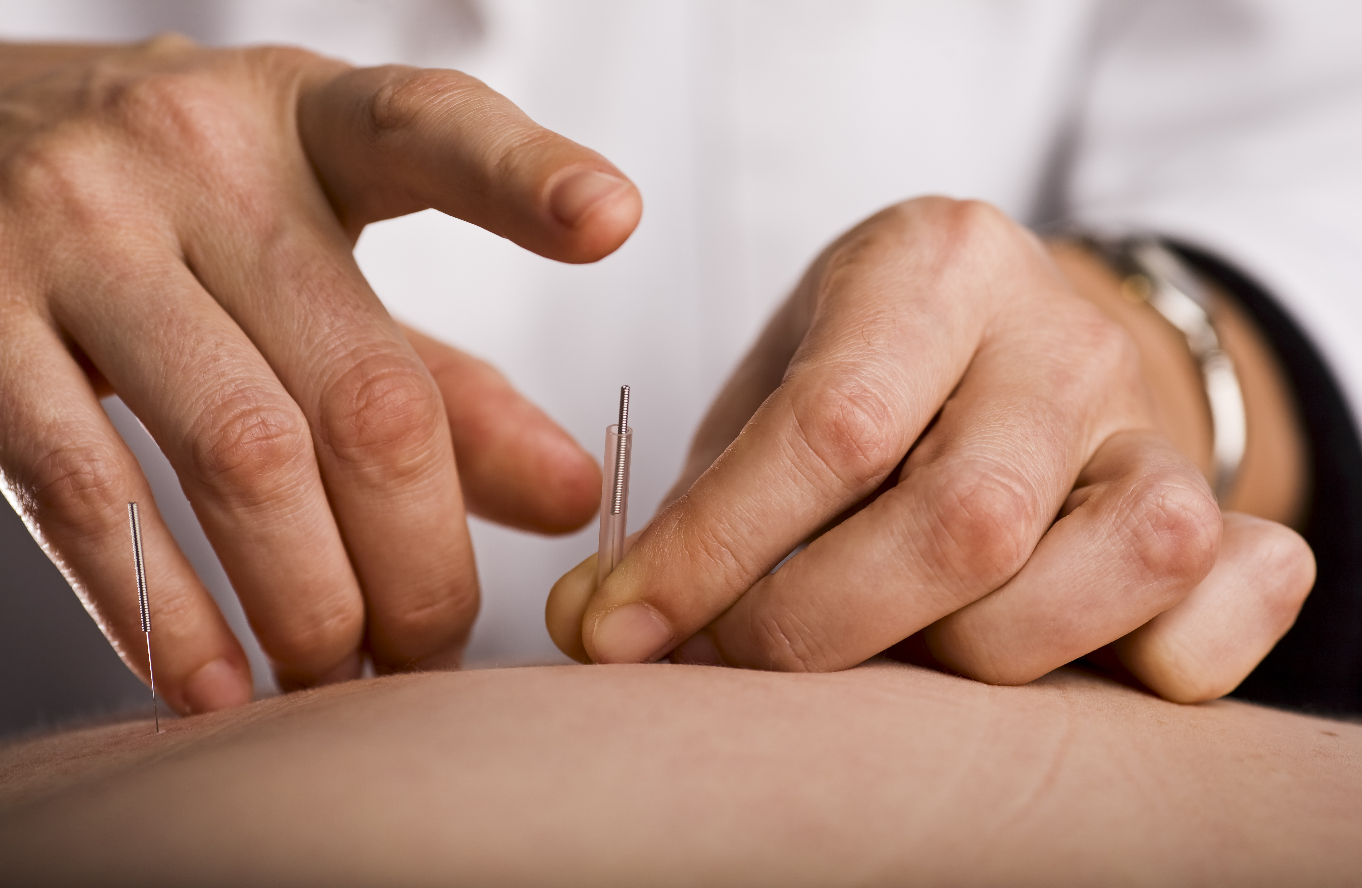 Acupuncture Can Improve Chronic Pain and Depression Treatment