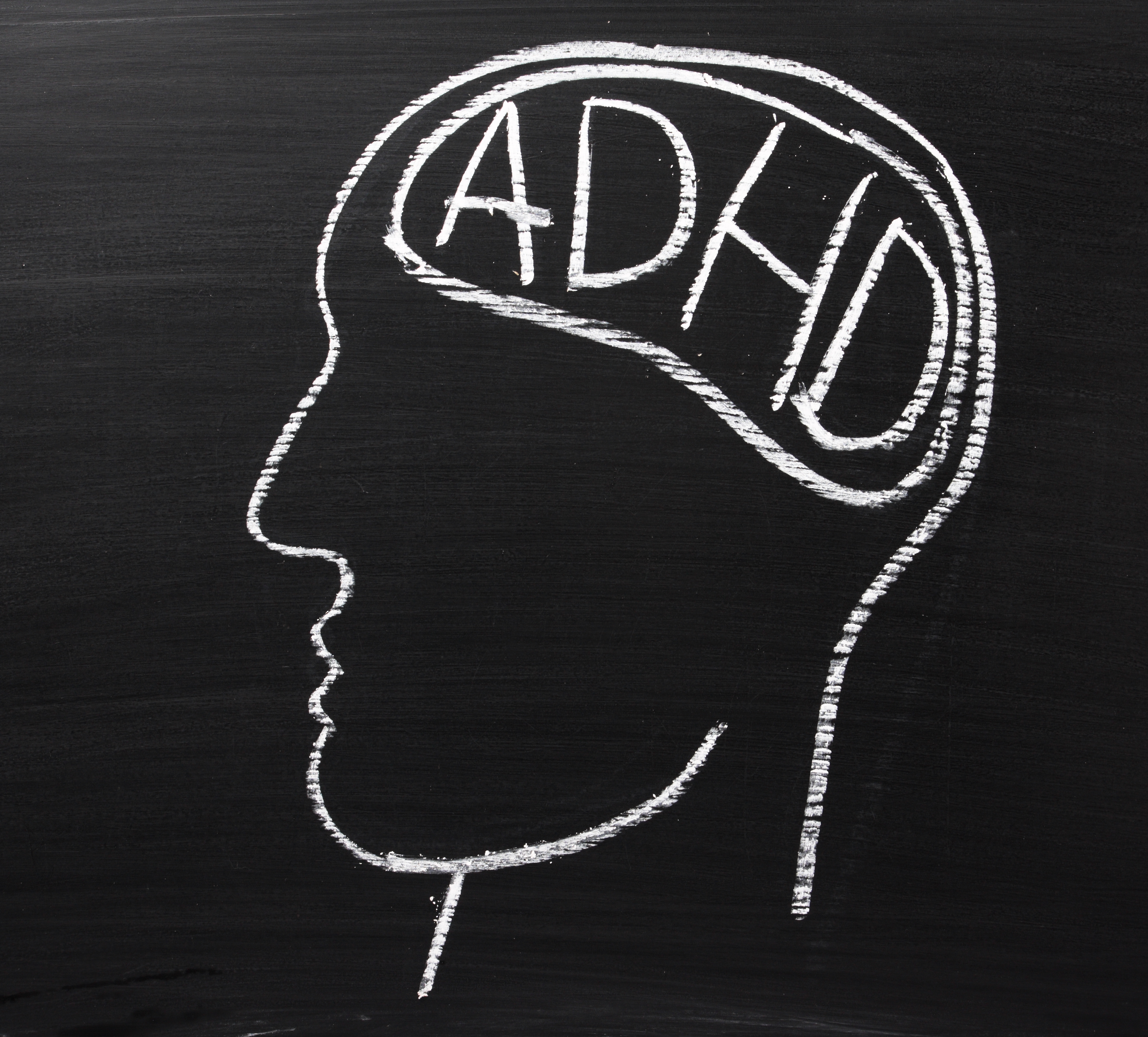 Does ADHD Lead to Substance Abuse?